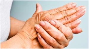 17-02-23-arthritis